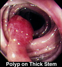 Polyp on Thick Stem