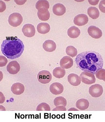 Gastroenterology: Iron Deficiency Anemia. - Medword ... B12 Deficiency Smear